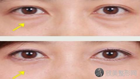 无锡哪个医生做眼袋手术好?无锡内切去眼袋手术医生排名推荐及案例