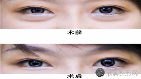 苏州哪个医生做眼袋手术好?苏州内切去眼袋手术医生排名推荐及案例