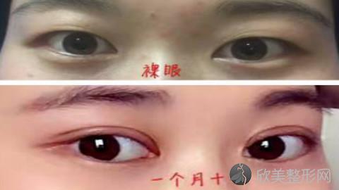 南昌双眼皮手术比较好的医生有哪些?南昌做双眼皮出名的医生排名推荐及案例