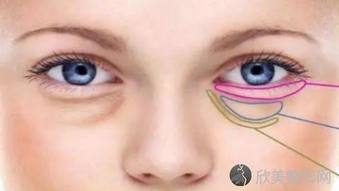 广州哪个医生做眼袋手术好?广州内切去眼袋手术医生排名推荐及案例