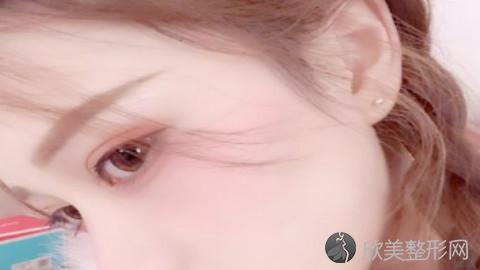 苏州双眼皮手术比较好的医生有哪些?苏州做双眼皮出名的医生排名推荐及案例