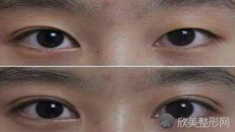 无锡双眼皮手术比较好的医生有哪些?无锡做双眼皮出名的医生排名推荐及案例