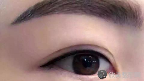 武汉双眼皮手术比较好的医生有哪些?武汉做双眼皮出名的医生排名推荐及案例