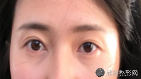 大连双眼皮手术比较好的医生有哪些?大连做双眼皮出名的医生排名推荐及案例