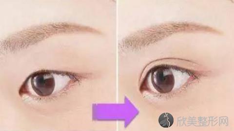 绵阳双眼皮手术比较好的医生有哪些?绵阳做双眼皮出名的医生排名推荐及案例
