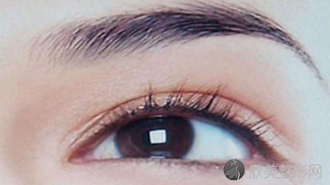 泉州双眼皮手术比较好的医生有哪些?泉州做双眼皮出名的医生排名推荐及案例