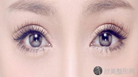 温州双眼皮手术比较好的医生有哪些?温州做双眼皮出名的医生排名推荐及案例