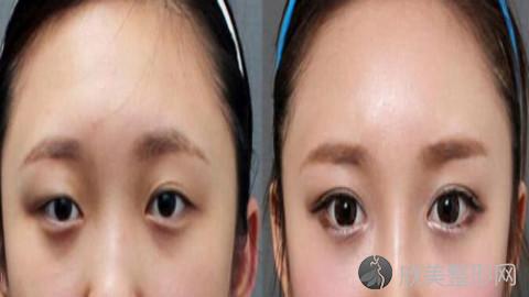 贵阳双眼皮手术比较好的医生有哪些?贵阳做双眼皮出名的医生排名推荐及案例