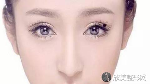 福州双眼皮手术比较好的医生有哪些?福州做双眼皮出名的医生排名推荐及案例