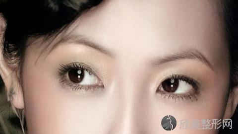 上海双眼皮手术比较好的医生有哪些?上海做双眼皮出名的医生排名推荐及案例