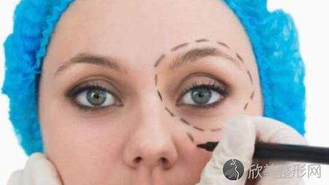 安医割双眼皮怎么样?附朱飞医生埋线双眼皮案例及价格表