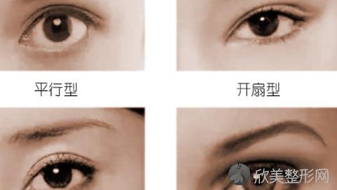 徐州四院整形科双眼皮修复哪个医生好?修复医生名单+收费价格表