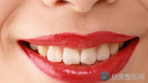 徐州四院口腔科正畸怎么样?哪个医生好?附整牙价格表