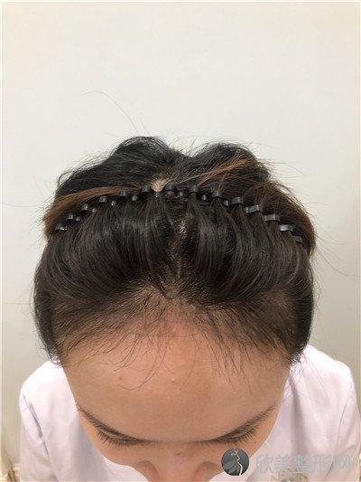北京柏丽医疗美容门诊部好不好?附案例 价格表一览