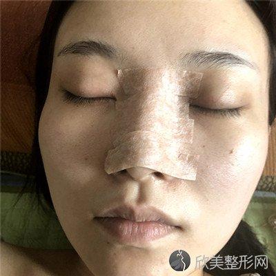 北京协和医院整形外科技术如何?附案例|价格表一览