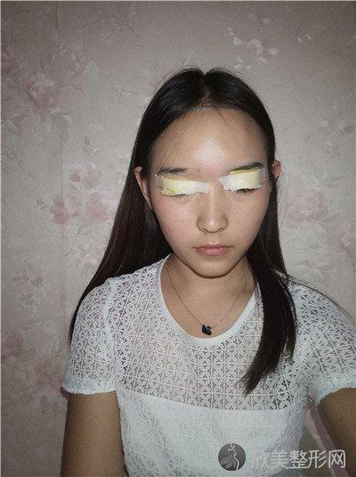 北京协和医院整形外科怎么挂号?医院案例 项目价格表最新
