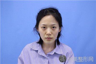 北京协和医院整形外科可以用医保吗?附案例 全新价格表