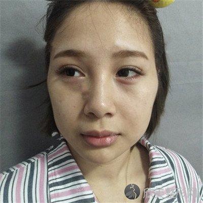 北京协和医院整形外科在东院还是西院?附案例 价格表一览