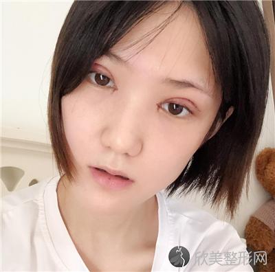 北京维嘉口腔门诊部技术如何?附案例|价格表一览
