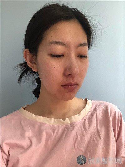 北京中诺口腔医院口碑如何?附案例 全新价格表