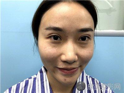北京中诺口腔医院价格怎么样?附案例 价格表一览