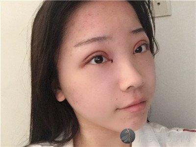 北京中诺口腔医院地址在哪里?医院案例 项目价格表最新