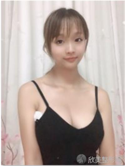 北京伊美瑞医疗美容诊所口碑好吗?附案例 价格表一览