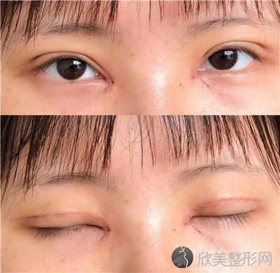 北京伊美尔美容院正规吗?医院案例 项目价格表最新