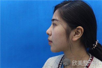 北京当代医疗美容门诊部口碑好吗?附案例 价格表一览