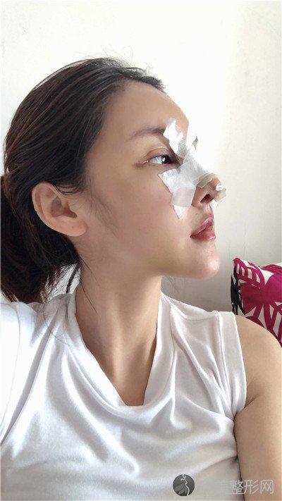 北京济诚仁医疗美容门诊部靠谱吗?附案例|价格表一览