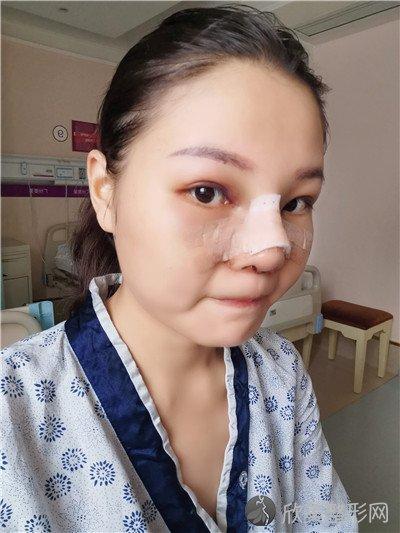 北京知音医疗美容门诊部口碑好吗?附案例|全新价格表