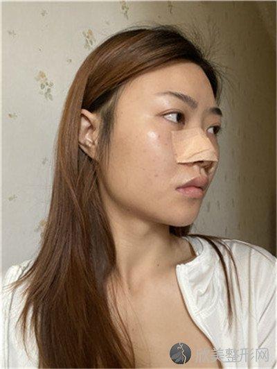 北京英煌医疗美容诊所口碑好吗?医院案例|项目价格表最新