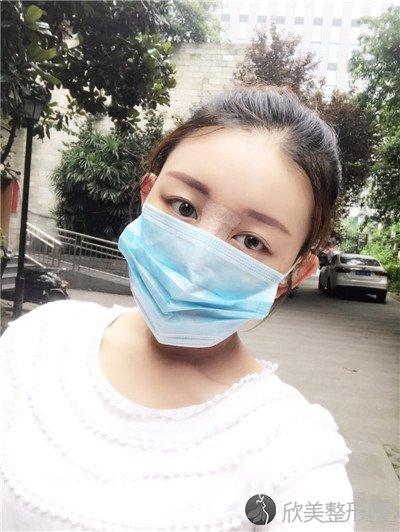 北京安贞医院激光整形科正规吗?附案例|价格表一览