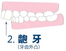 北京牙齿矫正,终于等到你,还好你没放弃