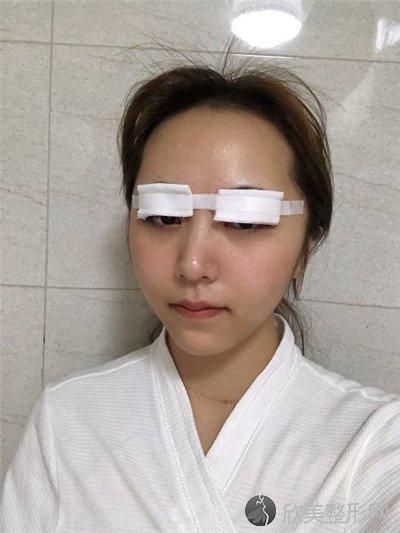 北京安贞医院激光整形科好不好?医院案例|项目价格表最新