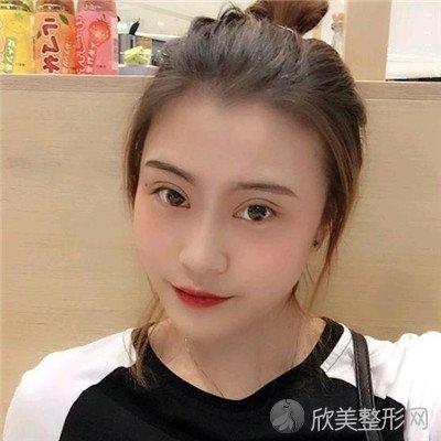 北京博美医疗美容怎么样?医院案例 项目价格表最新