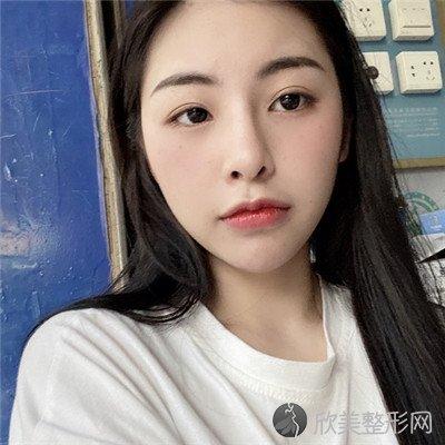 北京愉悦医疗美容医院技术好吗?附案例 全新价格表
