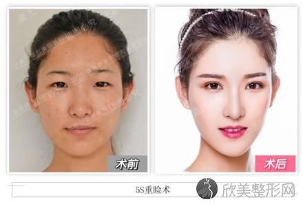 青岛伊美尔刘长发:5S重睑术,打造岛城双眼皮手术王牌