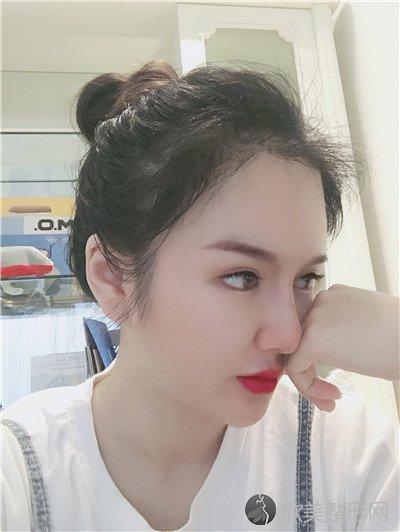 北京悦然医疗美容诊所靠谱吗?附案例|价格表一览