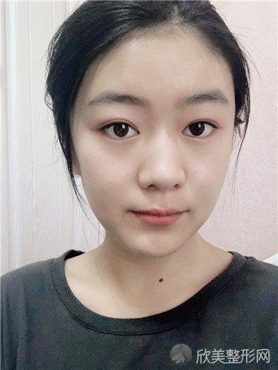 北京悦然医疗美容诊所技术好吗?医院案例 项目价格表最新