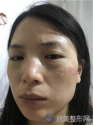 北京悦然医疗美容诊所怎么样?附案例|全新价格表
