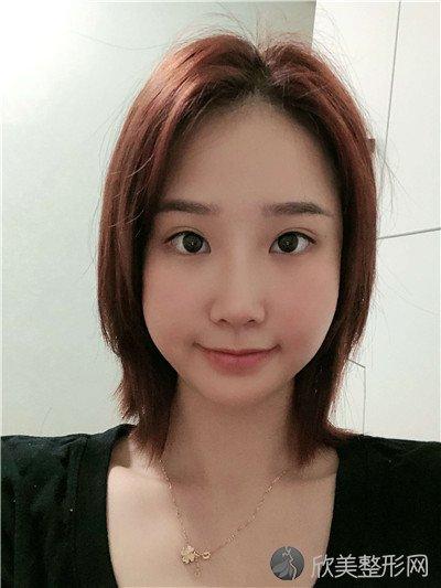 北京悦然医疗美容诊所正规吗?附案例 价格表一览