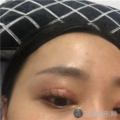 北京悦然医疗美容诊所好不好?医院案例|项目价格表最新