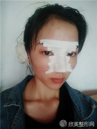 北京蜜邦医疗美容诊所好不好?附案例 价格表一览