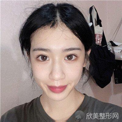 北京蜜邦医疗美容诊所怎么样?附案例|全新价格表