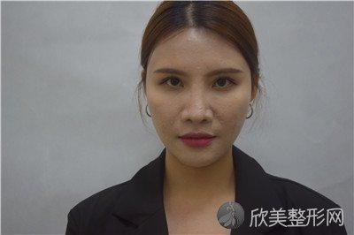 北京王磊医疗美容诊所口碑好不好?附案例|全新价格表