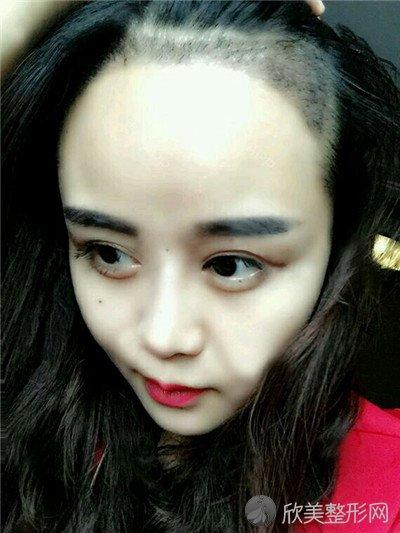 北京王磊医疗美容诊所靠谱吗?附案例 价格表一览
