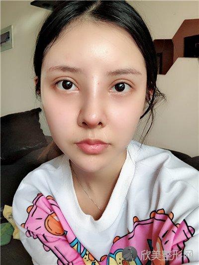 北京高兰德医疗美容诊所技术好吗?附案例 全新价格表