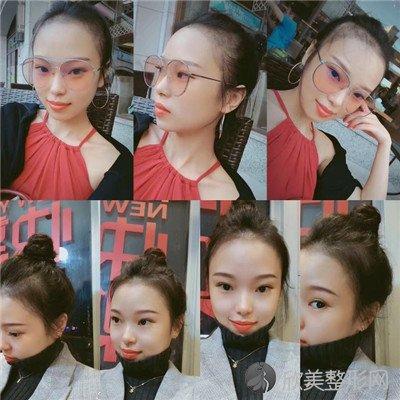北京高兰德医疗美容诊所正规吗?附案例|价格表一览