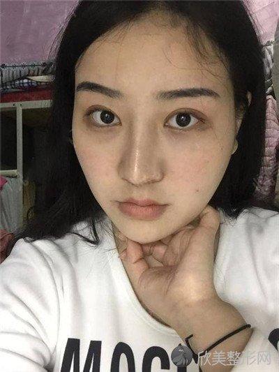北京圣嘉新医疗美容医院好不好?附案例|价格表一览